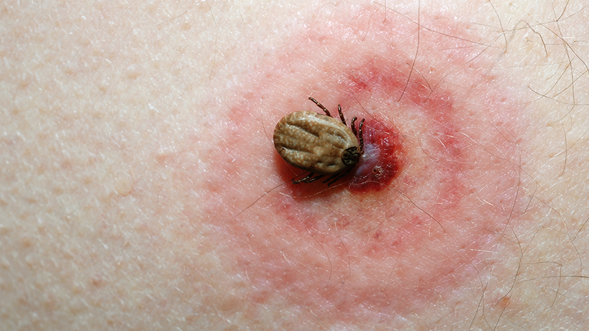 De gevolgen van Lyme
