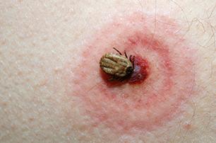 Lyme Awareness Maand: een levensontwrichtende ziekte