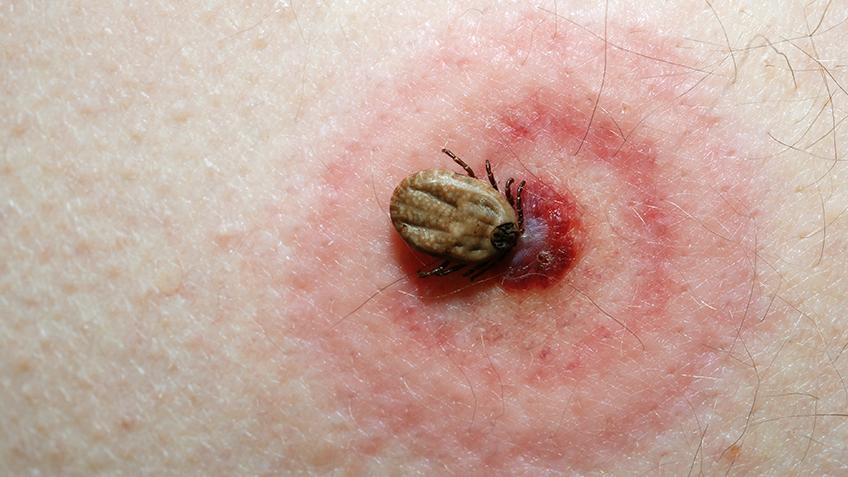 Lyme awareness maand